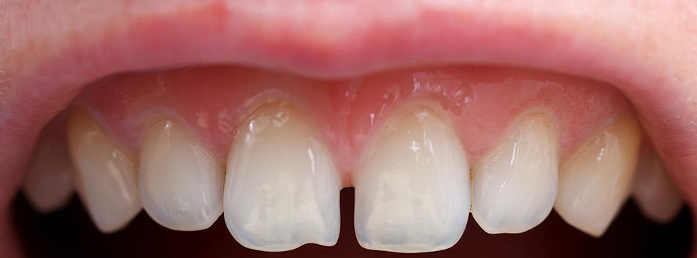transparency in teeth